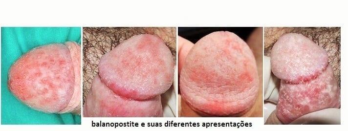 Doença no pênis, balanopostite