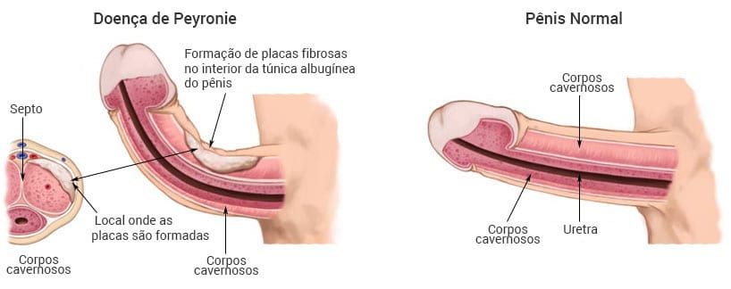 Doenças no pênis, Doença de Peyronie