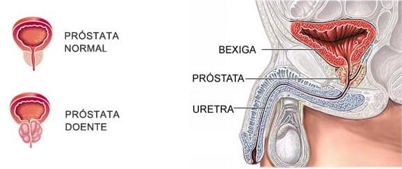 Onde fica a Próstata